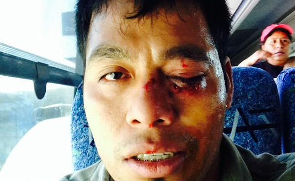 Omar Garcia suffered a black eye and a bloodied face in a clash outside the army base in Iguala last week.